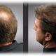 Как остановить выпадение волос у мужчины: эффективные методы